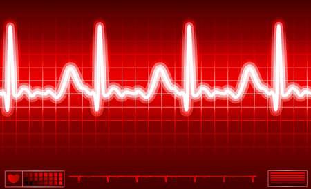 ritme: hart monitor scherm Stockfoto