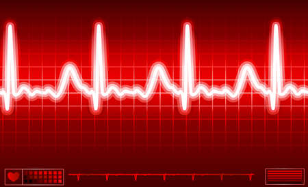 heart disease: heart monitor screen