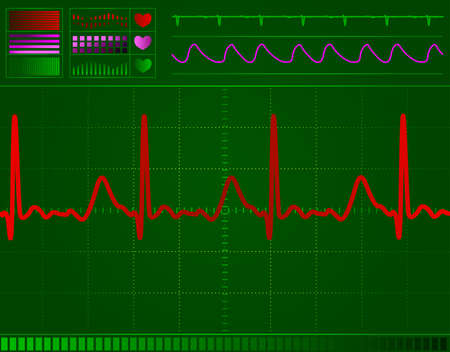 heart monitor screen with normal beat signal Stock Photo - 6297307