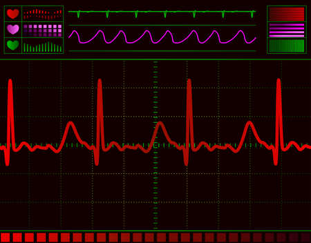 heart monitor screen with normal beat signal Stock Photo - 6332669
