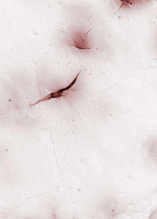 abstract cuts on living tissue