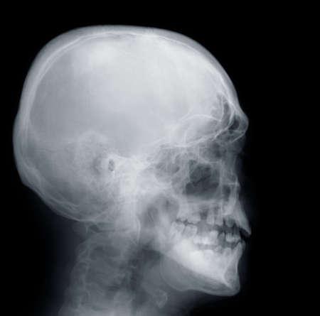 X-ray of Human Skull photo