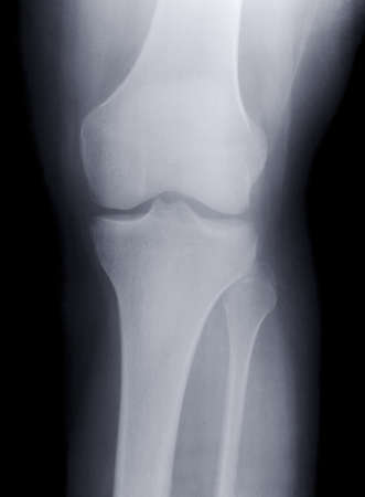 X-ray Knee Stock Photo