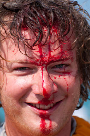 head wound following a sports injury Stock Photo