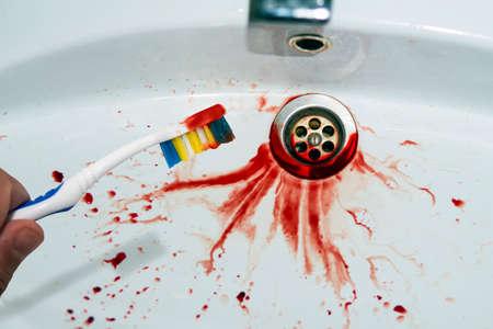 Nahaufnahme einer Zahnbürste in männlicher Hand mit Blutspuren auf einem blutbespritzten Waschbeckenhintergrund. Blutige Zahnbürste in der Nähe des fleckigen Waschbeckens. Blutendes Kaugummi hat Spuren im Waschbecken hinterlassen. Mundhöhle. Standard-Bild