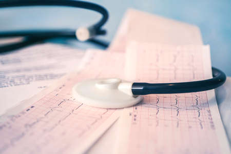 Medical stethoscope lying on cardiogram chart closeup on a blue background. Medical help, prophylaxis, disease prevention or insurance concept. Cardiology care, health, protection prevention Stock Photo