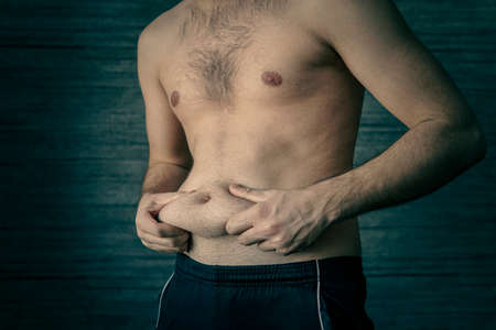 Man squeeze belly fat on a dark background. Early stage of obesity. An adult male squeezes a fold of fat on his stomach. The problem of obesity in young men.