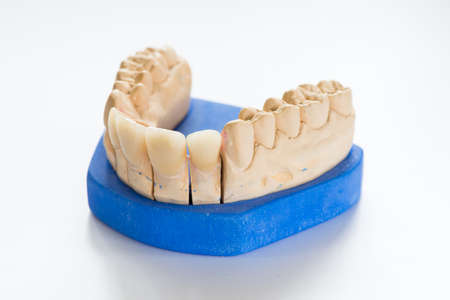 Dental gypsum model in dentist laboratory office - close-up.  Gypsum Dentures with porcelain teeth isolated on white background - copy space