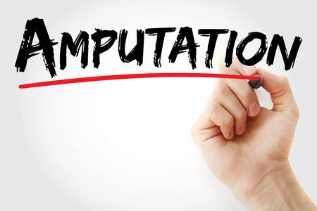 amputation: Hand writing amputation with marker, concept background Stock Photo