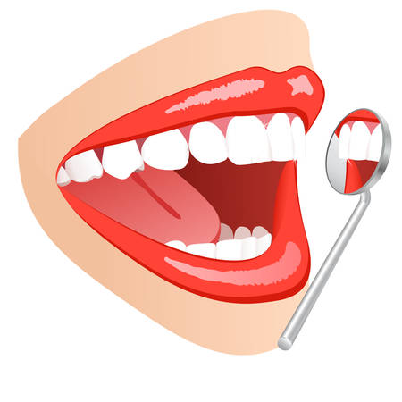 mouth to mouth: white teeth mouth with dental mirror  Illustration
