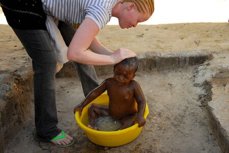 albino: Mwanza,Tanzania, February 8, 2010: Albino girl who washes a baby in the basin.Tanzania is the African region with more albinos. By the year 2006 albino people are killed for witchcraft rituals