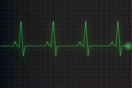 heart rate monitor: Electrocardiogram Illustration