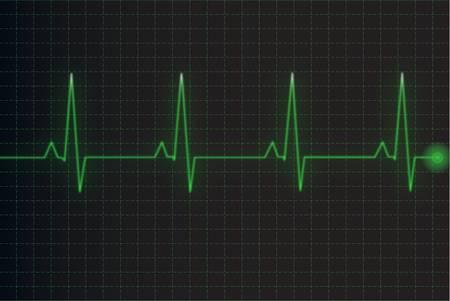 Electrocardiogram Ilustração