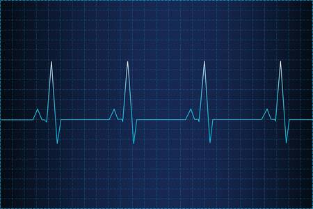 heart beat: Electrocardiogram Illustration