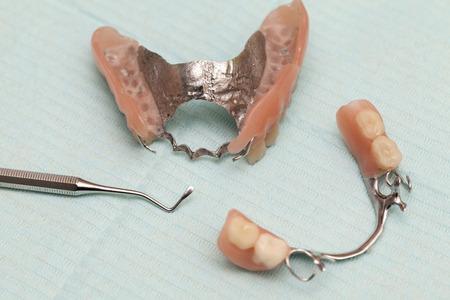 歯科補綴物と歯のためのセラミック カバー