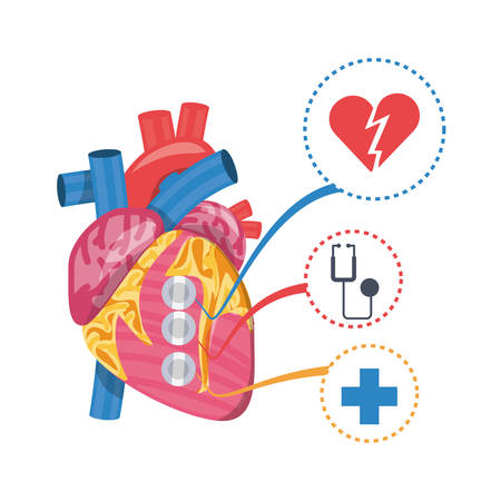 heart condition to infarction prevention vector illustration