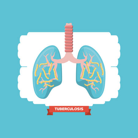 Lungs with tuberculosis bacterias over white and blue background, colorful design vector illustration Illustration