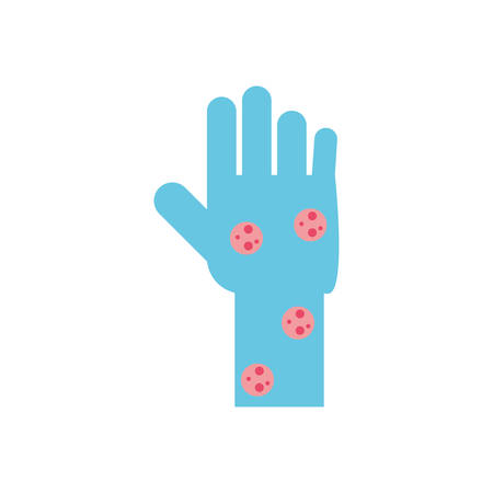 hand with varicella over white background, flat style icon, vector illustration