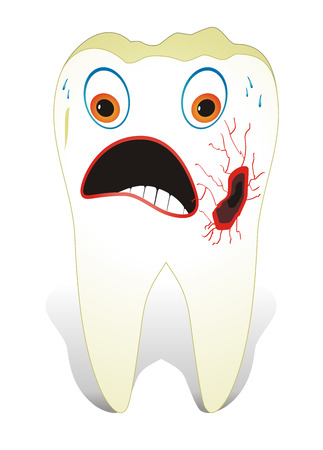 lesion: Vector illustration from teeth care concept, one unhealthy molar tooth. Illustration