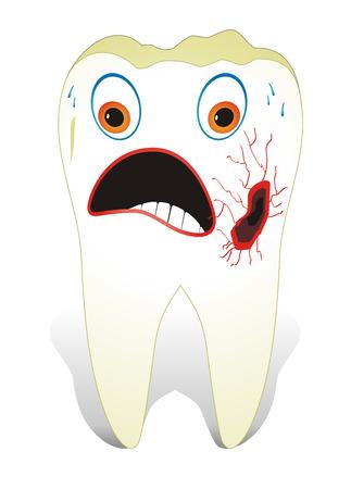 holten: Vectorillustratie van tanden care concept, een ongezonde molaire tand.