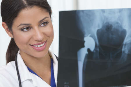Female woman medical doctor holding artificial hip replacement x-ray in hospital photo