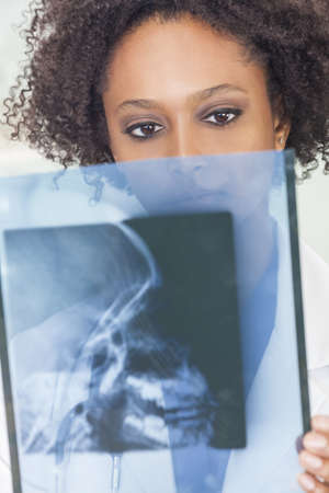 An African American female woman medical doctor with a an x-ray in hospital