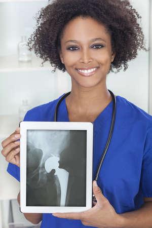 Un doctor americano africano mujer femenina m�dico en hospital con un equipo Tablet PC con un paciente de pr�tesis de cadera de rayos X en la pantalla