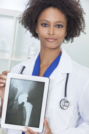 hip replacement: An African American female woman medical doctor in hospital holding a tablet computer with a hip replacement patient X-ray on the screen