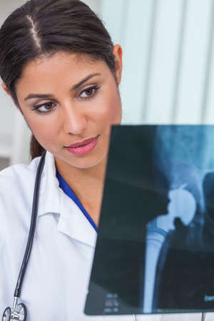 hip replacement: A Latina Hispanic female medical doctor surgeon looking at hip replacement x-ray in a hospital Stock Photo