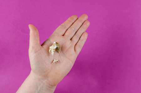 The teeth of the animal lie in the woman's palm. Two molars of one dog. A small Baby Tooth and the adult pet's fallen out tooth. Tartar. Dental health of pets. Veterinary.