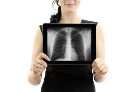 Woman holding tablet pc. Conept: X-ray with lungs. Isolated on white. photo
