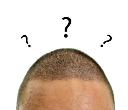unanswered: Closeup of mans head with questions. Isolated on white. Stock Photo
