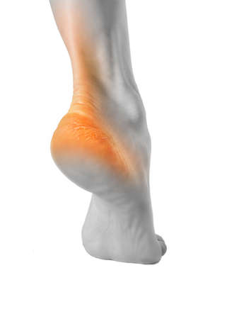 The heel of the foot with bad skin is covered with cracks.