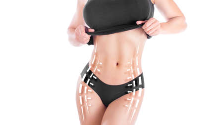 Female body with the drawing arrows on it isolated on white. Fat lose, liposuction and cellulite removal concept Imagens