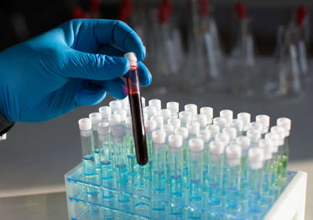 A test tube with blood in the hands of a researcher against the background of test tubes with reagents for immunological research.