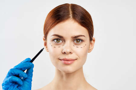 A woman in latex gloves made a markup around her face and is ready for surgery. Stock Photo