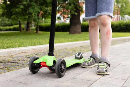 Ð¡lose-medium view on boy legs with injury and three-wheel scooter, close up
