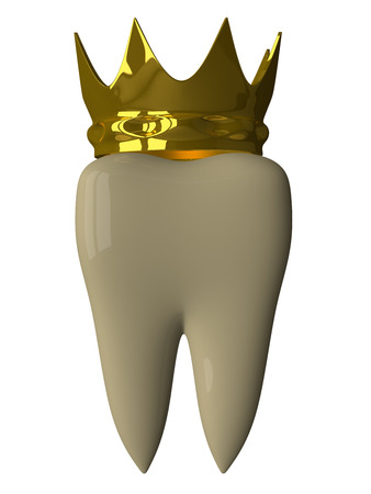 carious: Yellow tooth with golden crown isolated on white background, front view