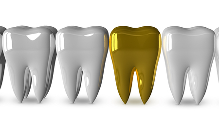 evident: Golden tooth in row of good bright white ones isolated on white background, front view