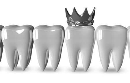 evident: Tooth with metallic crown in row of good bright white ones isolated on white background, front view
