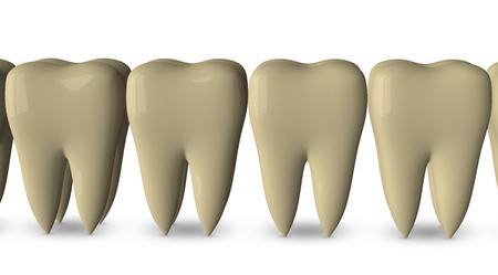 dientes sucios: Fila de dientes amarillos sucios aisladas sobre fondo blanco