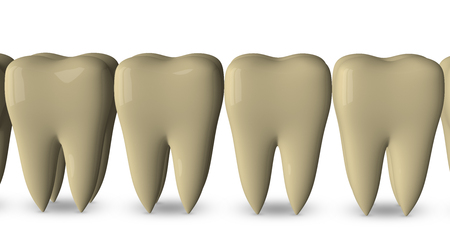 dirty teeth: Row of dirty yellow teeth isolated on white background Stock Photo
