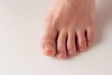 nails with fungus on feet close up