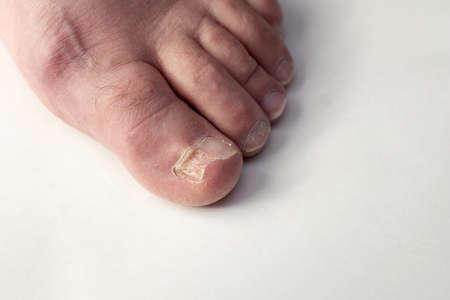 Toenail fungus on foot of a person. Damaged toenail. Stock Photo