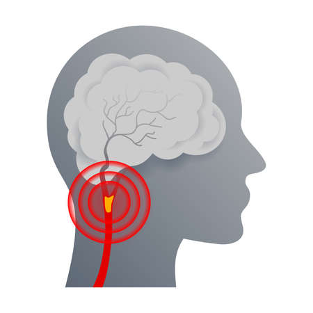 Cerebrovascular disease that affect the blood vessels of brain and cerebral circulation and damaged or deformed it - isolated vector icon Иллюстрация