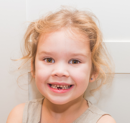 girl, a child lost a tooth, hole, oral hygiene