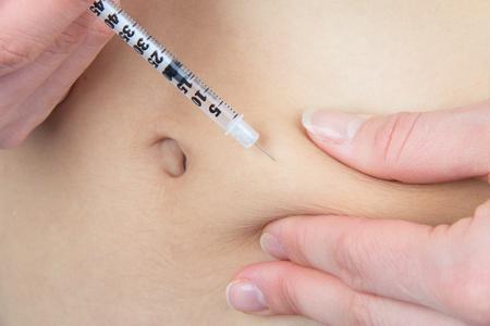 inyeccion: Paciente con diabetes hacer una inyecci�n subcut�nea de insulina con una jeringa de un solo uso, con aguja y de acci�n r�pida lispro Humalog en el abdomen por la prescripci�n del doctor aislado en un fondo blanco