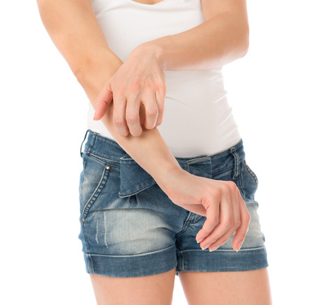 Young woman allergy scratching her arm isolated on a white
