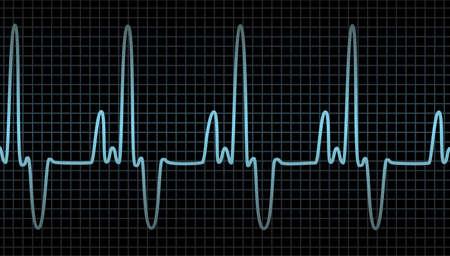 vector electrocardiograma del coraz�n humano Foto de archivo - 8487005