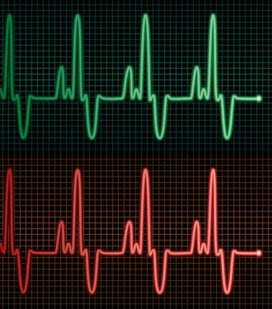 electrocardiograms of the human heart Stock Vector - 10427137